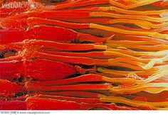 Color enhanced scanning electron micrograph of rods and cones in the human retina