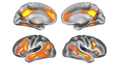 BABY BRAIN After pregnancy, women had less gray matter volume (yellow and orange) in regions of the brain (four different views shown), a change thought to reflect neural refinement. Many of these brain areas were active when mothers saw pictures of their babies. ~~ Oscar Vilarroya