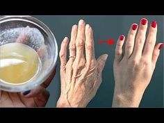 Healthy Beauty, Healthy Life, Age Spot Removal, Glass Of Milk, Baking Soda, Health Tips, Health Fitness, Skin Care, Food