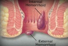 Hemoroizii sunt vase de sange umflate in interiorul anusului (… Home Remedies For Hemorrhoids, Natural Aloe Vera, Natural Herbs, Postpartum Hemorrhoids, Hemorrhoid Relief, In Natura, Home Treatment, Diet