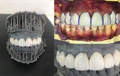 Coronas Dentales sobre tallado con restauración  estética con biocopia en #CADCAM CEREC sobre Modelo #3D de #policarbonato #laboratoriodental #carillasdentales #impresion3d #dentaldesign #dentallab #dentallabtech