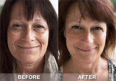 nerium before and after photos - Google Search