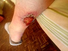 I started using Ultra Bee on the 15.11.18 I have cellulitis in my leg. I have been using all sorts of creams when I dress the wound.  Please find attached a photo of the wound after just three days of using the Ultra Bee Diabetic Sore Relief.  I really want to thank you for a brilliant product. Three Days, Diabetes, The Balm, Bee, Dress, Honey Bees, Dresses, Bees, Vestidos