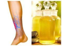 Varicose Vein Remedy, Varicose Veins, Herbal Remedies, Natural Remedies, Health Goals, Health Fitness, Psoriatic Arthritis, Atkins Diet, Healthy Alternatives