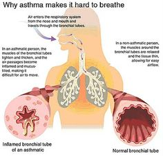 Asthma is a chronic situation that affects the respiratory system. During the course of an asthma attack, airways, which carry oxygen to and out of the lungs, Asthma Relief, Asthma Symptoms, Chronic Inflammatory Disease, Childhood Asthma, Natural Asthma Remedies, Herbal Remedies, Hard Breathing, Aromatherapy, Health