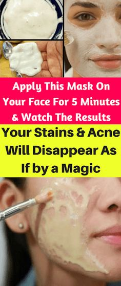 Apply This Mask On Your Face For 5 Minutes & Watch The Results– Your Stains & Acne Will Disappear As If By A Magic ~ KrobKnea