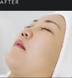 Best facial Singapore | Nouri Face and Body Concepts
