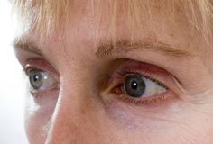 Facial Exercises To Tighten The Skin On Upper Eyelids | LIVESTRONG.COM