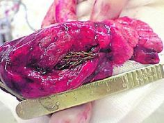 Russian man who was coughing up blood and complaining of chest pains was found to have this 5 centimeter spruce tree growing inside his lung। Since the tree was too large to have been accidentally inhaled, doctors believe the man must have inhaled a bud which grew inside the lung.