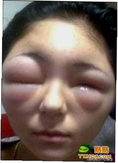 These 16 Images Of People With Allergies Are So Weird (And Hilarious).
