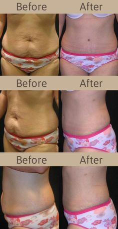 1000 Images About Diastasis Recti On Pinterest Diastasis Recti Tummy Tucks And Planks
