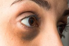 Puffy eyes and dark circles making you look bad? Find out how Essential oils for Dark Circles can help you get rid of those patches under your eyes and make you beautiful again! Reduce Dark Circles, Dark Circles Under Eyes, Beauty Oil, Muscles Of The Face, Dark Circle Remedies, Hair Removal Methods, Puffy Eyes, Facial Treatment, Popular Hairstyles