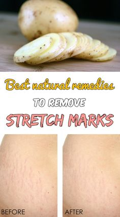 Best natural remedies to remove stretch marks -