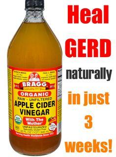 Acid Reflux Natural Remedies, Acid Reflux Cure, Acid Reflux Recipes, Acid Reflux Diet Plan, Leiden, Heartburn Relief, Vinegar, People