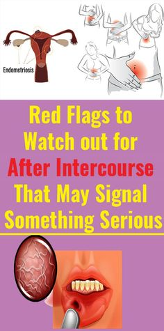 5 Things You Should Watch Out For After Intercourse That Can Indicate A Major Disease - Health Detox Wellness Fitness, Health And Fitness Tips, Health Diet, Fitness Diet, Health And Wellness, Health Facts, Wellness Tips, Natural Health Tips, Natural Health Remedies