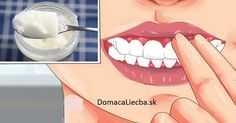 How common are root canals white tooth decay,dental health coverage dental hygiene basics,remedies for tooth and gum pain teeth whitening. Baking With Coconut Oil, Baking Soda And Lemon, Coconut Oil For Teeth, Coconut Oil Pulling, Baking Soda Deodorant, Baking Soda Shampoo, Turmeric Coconut Oil, Benefits Of Coconut Oil, Gum Health