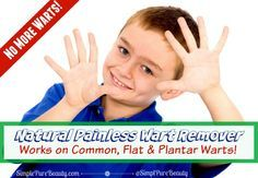 Natural Painless Wart Removal: Safe for Kids and Flat Warts on Face