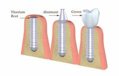 Implant, Abutment, Crown