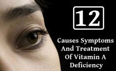 12 Causes Symptoms And Treatment Of Vitamin A Deficiency Make Hair Grow Faster, Grow Hair, Health And Wellness, Health Care, Food To Make, Vitamins, Foods, Food Food, Food Items