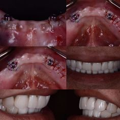From no teeth at all to a perfect Hollywood smile. Many people are wearing dentures that are clicking mobile nonfunctional and annoying. See your local periodontist for an alternative and possibly some better stability through implants. In this patient we placed two implants and did a minor alveolopasty (Reshaping of the bone). 3 months later pt was smiling ear to ear and excited about his new look!  #dentures #dentalcases #splint #splinting #mobility #dentalsurgery #celebrityperiodontist…