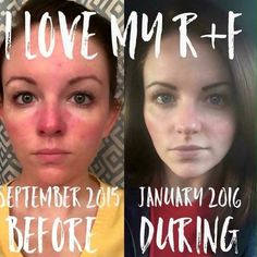 """It's Soothe Sunday!  Check out Devis Burnam's RF experience. Soothe makes skin happy!  If you or someone you  suffers from Rosacea Eczema or Psoriasis please message me I'm happy to help.  """"TRUE STORY: I am almost ashamed to post this. These two pictures are the same in almost every aspect. No makeup (well a little eye makeup) no filters...but can YOU spot the difference?  The left is me in September 2015 battling Rosacea for the millionth time in the past 7 1/2 years (mine only started…"""