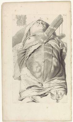 Pieter van Gunst | Tweede anatomische studie van de buik van een vrouw, Pieter van Gunst, Gerard de Lairesse, weduwe Joannes van Someren, 1685 | Anatomische studie van de buik van een vrouw, en de daar liggende vetlagen en spieren. Bovenaan rechts genummerd T. 32.