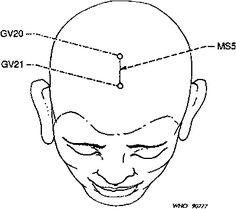 Un Proyecto de Norma Internacional de Nomenclatura acupuntura: Informe de un Grupo Científico de la OMS: 3. Proyecto de acupuntura nomenclatura estándar internacional: 3.6 líneas de acupuntura del cuero cabelludo