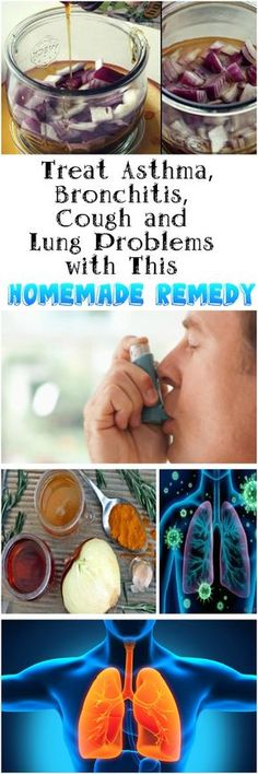 Toxins Hat We Eat Treat Asthma, Bronchitis, Cough and Lung Problems with This Homemade Remedy - Nature can really give us the answers we are seeking and so can this remedy that can be prepared with Cold And Cough Remedies, Holistic Remedies, Homeopathic Remedies, Constipation Remedies, Natural Health Tips, Natural Health Remedies, Natural Cures, Ayurveda, Bronchitis