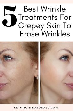 Best Wrinkle Treatments For Crepey Skin 5 Treatments to Erase Wrinkles For Tight Smooth Skin When it comes to working o. Best Skin Care Regimen, Skin Care Tips, Skin Tips, Best Wrinkle Treatment, Fitness Inspiration, Wrinkle Remedies, Eye Wrinkle, Loose Skin, Skin Tightening