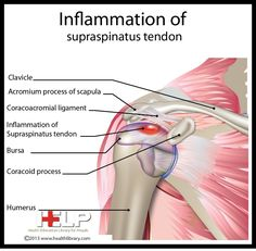 Inflammation of Supraspinatus Tendon