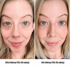 Curious about under eye fillers for dark circles? I'm sharing my experience of getting Juvederm Under Eye Filler Cost, Under Eye Fillers, Cheek Fillers, Botox Under Eyes, Botox Before And After, Tear Trough, Dark Eye Circles, Tears In Eyes, Dark Under Eye