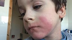 Ethan Cavanagh, seven, suffers such severe eczema his mother say it sometimes looks as though she has 'poured burning water over him'... He is currently being treated with chemotherapy drugs...