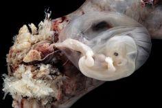 embryo
