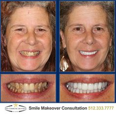 Austin's bestSmile Makeovers start at The Cosmetic Dentists of Austin. Call 512-333-7777 today for a free consultation!  #Smile #SmileMore #BeautifulSmile #AustinCosmeticDentist #AustinCosmeticDentistry #BestCosmeticDentist #Dentist #AustinDentist #DentalMakeover #ATX #Austin #CosmeticDentist #CosmeticDentistry #PicOfTheDay  #love #PhotoOfTheDay #2VisitSmileMakeover #Smilemakeover #AustinSmileMakeover #AustinVeneers #VeneersForTeeth #DentalVeneers #PorcelainVeneers