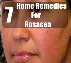 DIY Rosacea Remedies ~ 7 Home Remedies For Rosacea