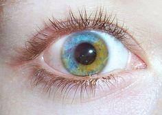 Blue and yellow fgreen heterochromia