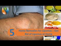 Secret Health Remedies 5 Home Remedies for Lipomas Natural Cancer Cures, Natural Headache Remedies, Natural Cures, Natural Healing, Toenail Fungus Remedies, Pimples Remedies, Health Remedies, Home Remedies, Lipoma Removal