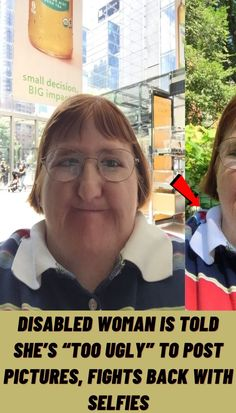 #Disabled #woman #told #too #ugly #post #pictures #fights #back #selfies Simple Acrylic Nails, Summer Acrylic Nails, Pastel Nails, Nude Nails, Funky Nail Art, Funky Nails, Finger Tattoos Words, Crochet Short Dresses, Stylish Nails