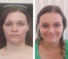 Dermalogica has always stressed the importance of results driven skin care, and this amazing before and after photo from Dermalogica Australia proves just that! Find out how one client received such amazing results for her acne: