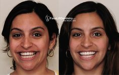 Its time to cheer up your life with a perfect start. A smile is the most beautiful aspect of an individual life so here we are going to provide you complete non-invasive Under Bite Correction to improvise your smile without any harmful surgery. Follow the link today to enhance more info on it.     #noninvasiveUnderBiteCorrection