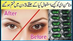Tooth Decay Treatment, Beauty Skin, Health And Beauty, Dove Cream, Baby Frock Pattern, Good Health Tips, Happy Eid, Homemade Skin Care, Dark Circles