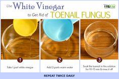 white vinegar for toenail fungus