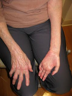 Severity of post polio syndrome symptoms depend upon the severity of initial infection. The more severe initial infection was the more severe post polio syndrome symptoms will be. Symptoms include muscle weakness, generalized and muscular fatigue, muscle atrophy, pain, sleep apnea and joint degeneration. Increased skeletal deformities such as scoliosis are also common. Aspiration pneumonia due to weakness in swallowing muscles and respiratory muscle weakness are usually fatal symptoms.