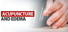 Acupuncture for Edema - How it Helps - ProgressiveHealth.com