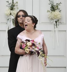 Dallas Wiens and Jamie Nash pose for pictures after getting married at Ridglea Baptist Church in Forth Worth, Texas, March 30, 2013. Wiens was the first American to receive a full face transplant after accidentally touching a high voltage wire while on a construction job and met Nash at a burn victim support group at Parkland Memorial Hospital after Nash had been in a bad car accident that left her with severe burns throughout her body.