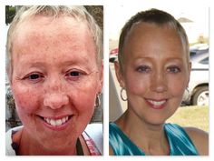 """Donella writes, """"Hi TEAM!!! Just wanted to share with you my before and after pics from Rodan + Fields Reverse.  I use the Reverse Regimen in the morning, everyday and the the Redefine Eye Cloths, along with the Redefine Multi-Function Eye Cream at night. I have been using it religiously since March.""""  Wowzers!!!"""