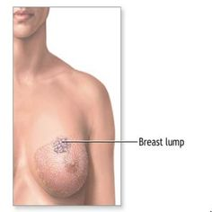 Cycstic breast disease