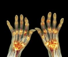 Fibromyalgia and rheumatoid arthritis frequently go together. Find out their similarities and differences plus how to treat them.