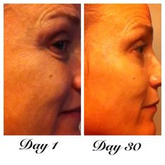Check out my awesome customer who messaged me because she is so excited with her results after only 30 days =)  She is using the Redefine Regimen & eye cream https://vmadden.myrandf.com