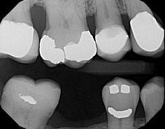 We make you, and your teeth smile :)